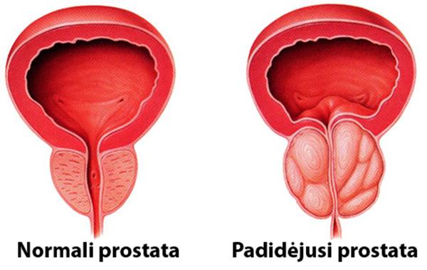 dažnas erekcijos prostatitas kaip išlaikyti varpos toną