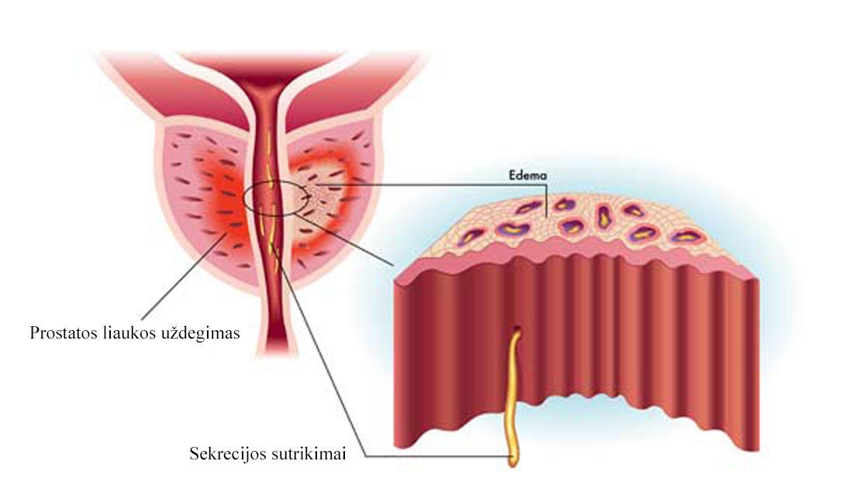 ką galima padaryti norint pagerinti erekciją