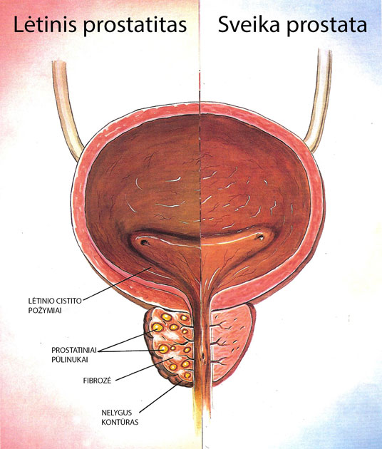 prostatito erekcijos simptomai