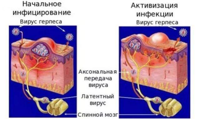 pumpavimas ir erekcija