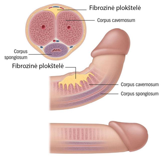 erekcijos metu maža varpa tampa didelė varpos dydžio skersmuo