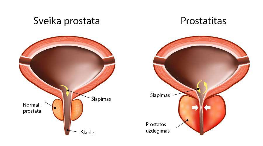 erekcijos gydymas po prostatito didziulis elementu dydziai