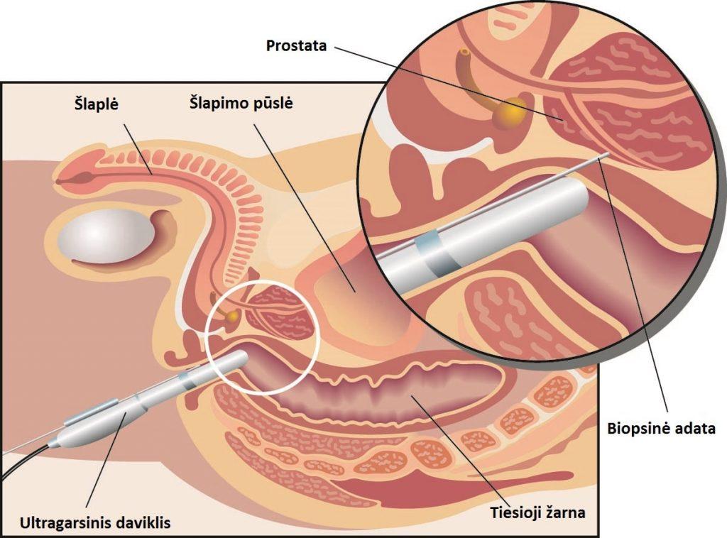 dažnas erekcijos prostatitas kadangi kiek metu galite padidinti peni