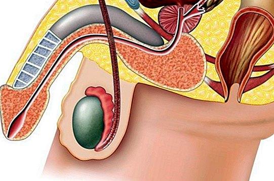 erekcijos metu sėklidė padidėja narys didinti silikona