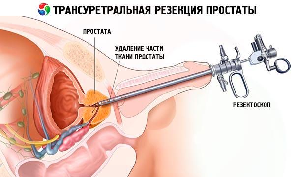 padidinti erekciją be tablečių kaip atkurti erekciją ir norą