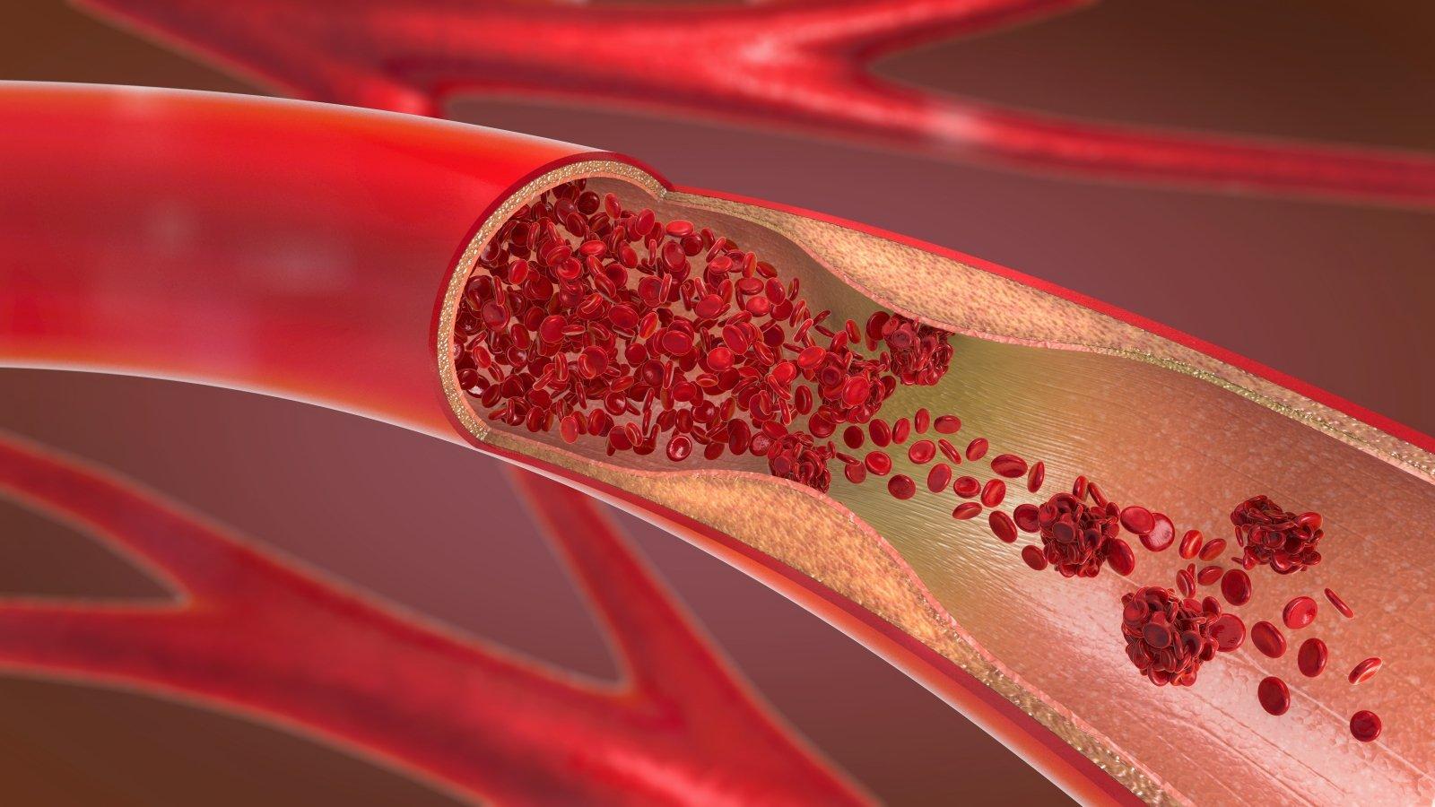 kraujo krešulys varpos venoje ar po prostatos masažo pagerėja erekcija