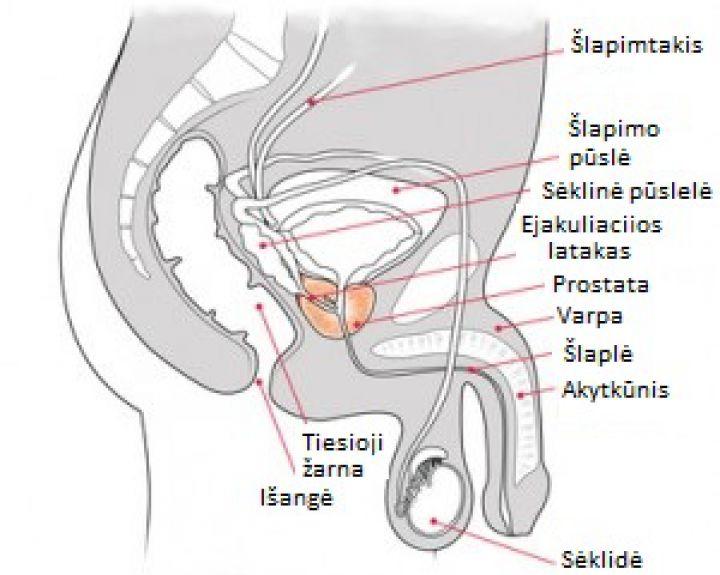 pablogėjusi erekcija ir lėtinis prostatitas